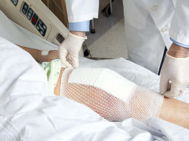 What to Expect from Knee Surgery